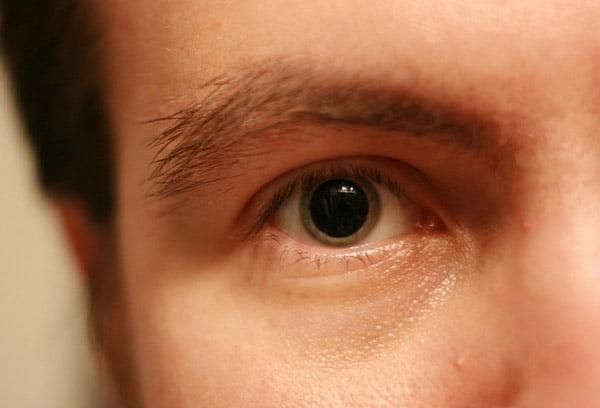 Глаз наркомана