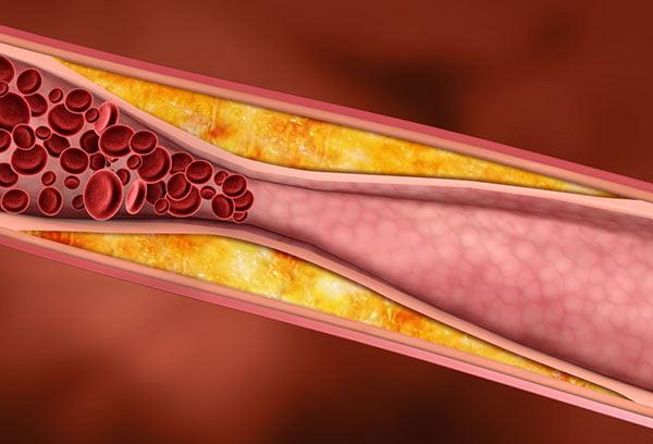 Холестерин в сосуде