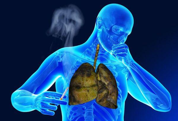 вред курения на легкие
